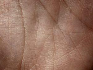skin-5-texture_GJv9mnH_